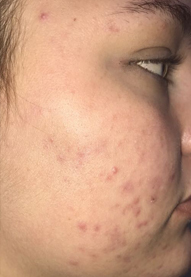 After-Aesthet Acne Treatment